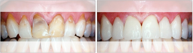 Veneers - Before & After